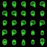 De Opeenvolging van de Schedel van de röntgenstraal Stock Foto's