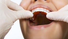 De orthodontische arts onderzoekt tanden en gommen van kaak Stock Afbeelding