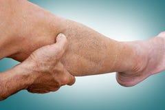 De oude holding en de vingers van de mensenhand bij lymfatische drainagemassage Stock Foto's