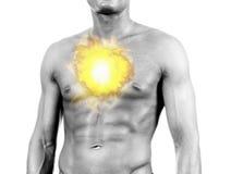 De pijn van de borst - brandwond Stock Foto's