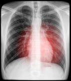 De pijn van het hart op röntgenstraal Stock Foto