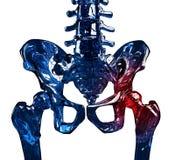 De pijnconcept van de skelet 3D heup Stock Afbeeldingen