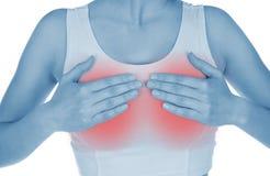 De pijnlijke borst, getoond rood, houdt overhandigd Stock Foto