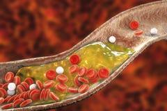De plaque van de cholesterol in slagader royalty-vrije illustratie