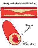 De plaque van de cholesterol in slagader stock illustratie