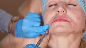 De plastic chirurg verwijdert rimpels met botulinum toxine op het gezicht van een vrouw stock videobeelden