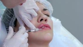 De plastische chirurgie van de lippeninjectie stock videobeelden