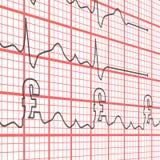 De Ponden van het elektrocardiogram Stock Fotografie