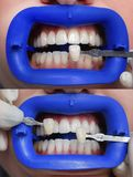 De procedure om de kleurenschaduwen van tanden before and after bleken te vergelijken Royalty-vrije Stock Foto's