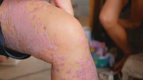 De psoriasispati?nten gebruiken kruidengeneesmiddelen om hun eigen benen met wonden te gebruiken stock video