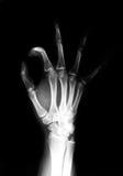 De röntgenfoto van de hand Royalty-vrije Stock Foto's