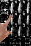 De Röntgenstraal van de backbone Royalty-vrije Stock Afbeeldingen