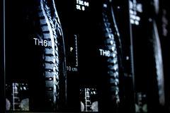De Röntgenstraal van de backbone Royalty-vrije Stock Foto