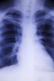De röntgenstraal van de borst Stock Foto