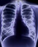 De röntgenstraal van de borst Royalty-vrije Stock Foto