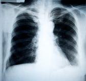 De röntgenstraal van de borst royalty-vrije stock afbeelding
