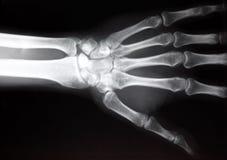 De röntgenstraal van de hand Royalty-vrije Stock Afbeeldingen