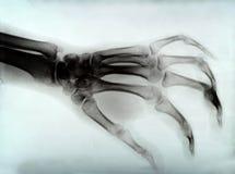 De röntgenstraal van de hand royalty-vrije stock fotografie