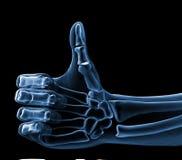 De röntgenstraal van de hand Stock Fotografie