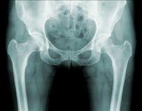 De röntgenstraal van de heup, heuppijn Stock Foto