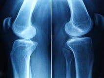De röntgenstraal van de knie stock afbeelding
