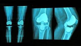 de röntgenstraal van de knievervanging stock afbeelding