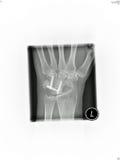 De röntgenstraal van de pols royalty-vrije stock fotografie