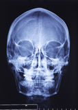 De röntgenstraal van de schedel Stock Foto