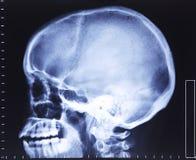 De röntgenstraal van de schedel Royalty-vrije Stock Foto's