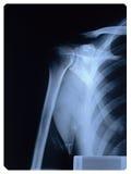 De Röntgenstraal van de schouder Stock Foto
