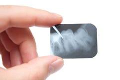 De röntgenstraal van de tand Stock Foto's