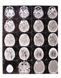 De röntgenstraal van de tomografie Stock Afbeeldingen