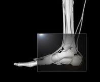 De Röntgenstraal van de voet Stock Foto's