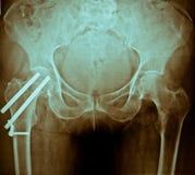 De Röntgenstraal van het bekken royalty-vrije stock afbeeldingen