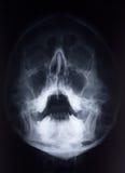 De Röntgenstraal van het gezicht Royalty-vrije Stock Foto's