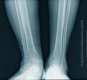 De röntgenstraal van het kalf Stock Foto's