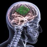 De Röntgenstraal van het skelet - Hersenen met cpu Royalty-vrije Stock Fotografie