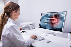 De Röntgenstraal van tandartslooking at teeth op Computer stock afbeeldingen