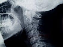 De radiografie van de hals Stock Afbeeldingen
