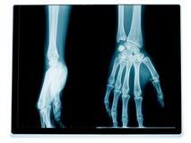 De radiografie van de hand en van de pols Stock Afbeeldingen
