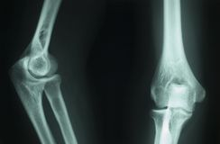 De radiografie van de röntgenstraal royalty-vrije stock afbeeldingen