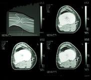 De radiografie van de röntgenstraal Royalty-vrije Stock Foto