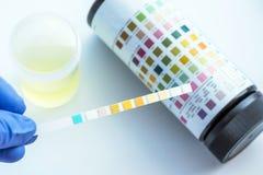 De reagensstrook voor Urineonderzoek, Routineurineonderzoek, controleert anaal Stock Foto