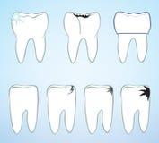 De reeks van het tandsymbool. stock illustratie