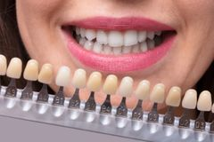 De Reeks van de vrouwenholding Implants met Diverse Schaduwen van Toon royalty-vrije stock foto's