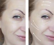 De regeneratie van vrouwenrimpels before and after procedures die, therapie opheffen royalty-vrije stock foto