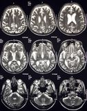 De resonancia magnética de cerebro imagen de archivo