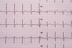 De resultaten van het electrocardiogram Royalty-vrije Stock Afbeeldingen