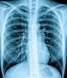 De Röntgenstraal van de borst Royalty-vrije Stock Fotografie