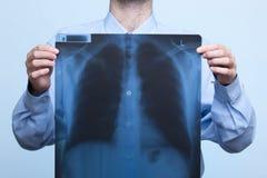 De röntgenstraal van de borst Stock Afbeelding